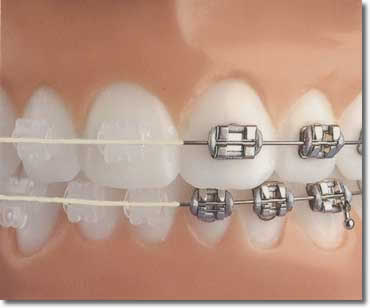 Photos Different Types Orthodontic Braces http://sites.google.com/site/mvcdentalhygiene2013/orthodontics/different-types-of-orthodontics