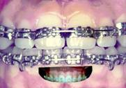 http://drted.com/Edgewise%20Braces.jpg