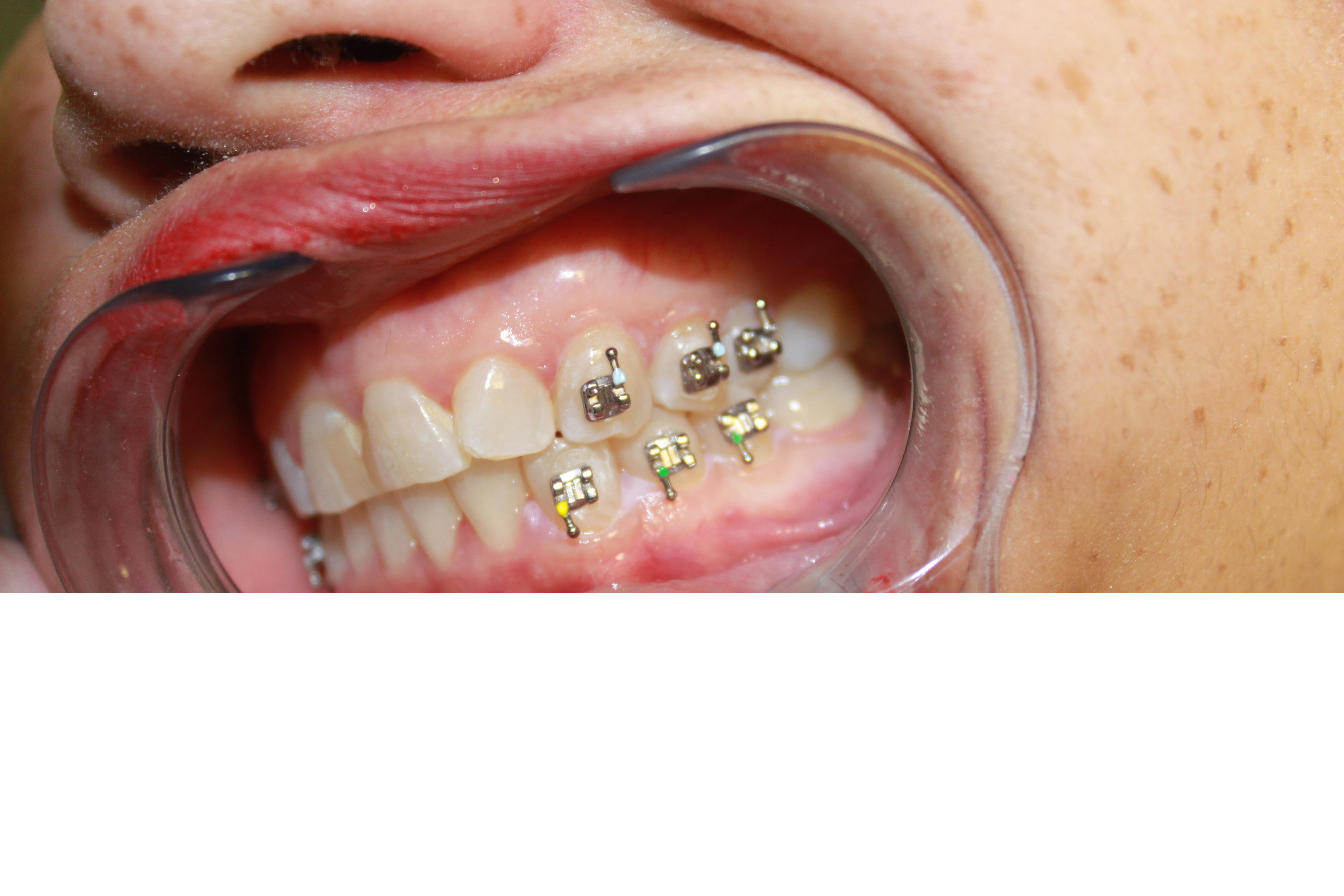 Excellent Ojw Orthodontic Jaw Wiring Clearer Speech Wiring 101 Orsalhahutechinfo