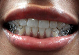 Marvelous Ojw Orthodontic Jaw Wiring Least Conspicuous Wiring 101 Orsalhahutechinfo