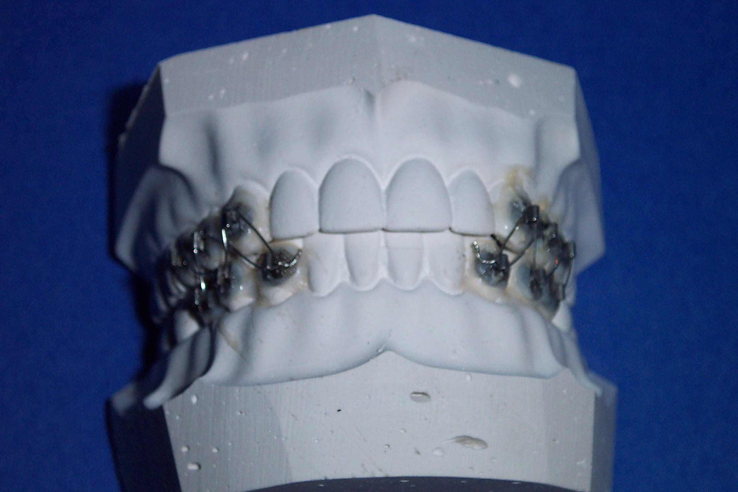 Jaw wiring Informed Consent