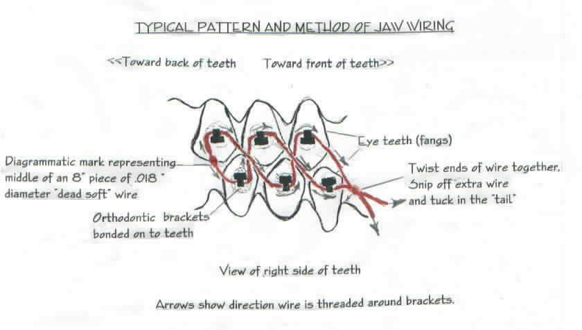 jaw wiring for weight loss gs rh drted com Fractured Jaw Treatment Broken Jaw Wired Shut